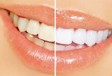 سفید کردن دندانها (BLEACHING)