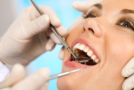 هزینه کشیدن دندان در کرج