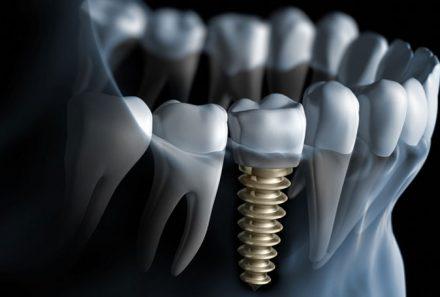 ایمپلنت دندان در کرج ۰۲۶۳۲۵۲۸۶۲۸