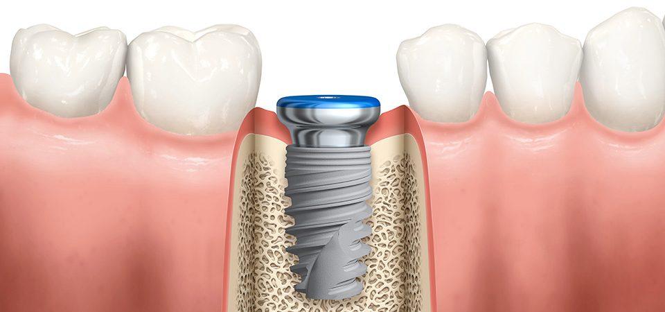 مراحل ایمپلنت دندان چیست ؟ ۰۲۶۳۲۵۲۸۶۲۸