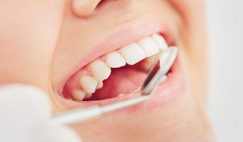هزینه عصب کشی دندان در کرج ۰۲۶۳۲۵۲۸۶۲۸
