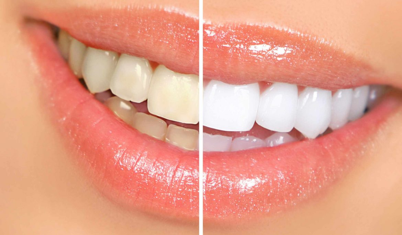 هزینه بلیچینگ دندان در کرج ۰۲۶۳۲۵۲۸۶۲۸