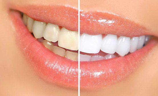 هزینه بلیچینگ دندان در کرج
