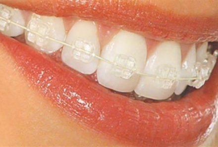 ارتودنسی دندان در کرج