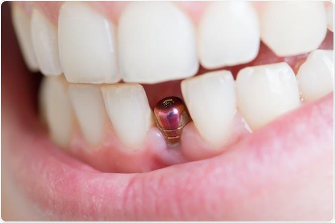 ایمپلنت دندان جلو چگونه انجام می شود؟
