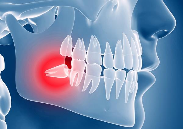بهترین جراح دندان عقل در تهران و کرج کیست؟