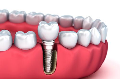 بهترین جراح ایمپلنت دندان