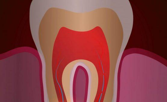 درمان خانگی کیست دندان