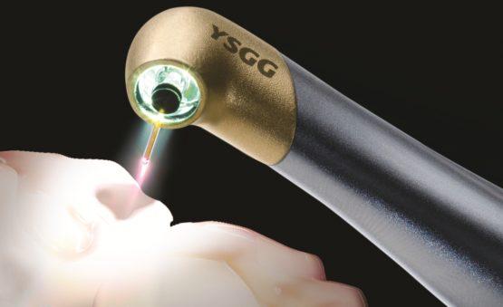 دندانپزشکی با لیزر در کرج
