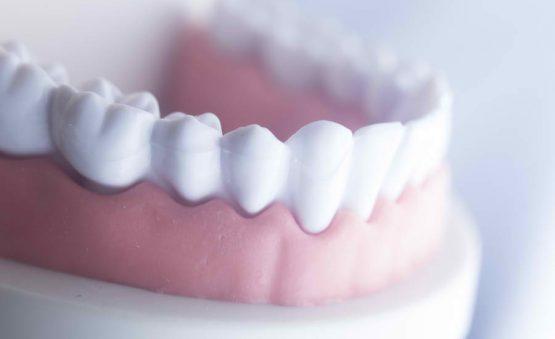 افزایش طول تاج دندان