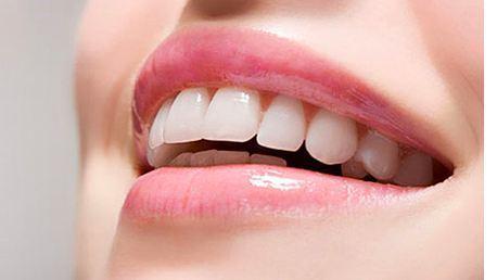 لمینت دندان در سال 99