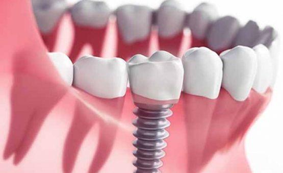 قبل از انجام ایمپلنت دندان
