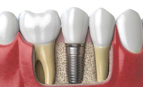 کلینیک ایمپلنت دندان در کرج