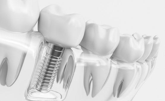 ایمپلنت دندان بدون درد و جراحی