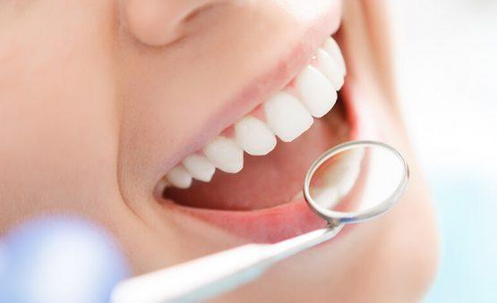 روکش زیبایی دندان در کرج