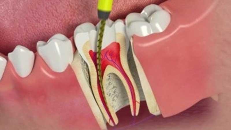 عوارض عصب کشی دندان